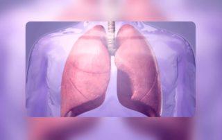 Lunge mit idiopathischer Lungenfibrose (IPF)
