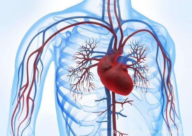Folgeschlaganfälle, Gefäßtest warnt vor Herzinfarkt und Schlaganfall