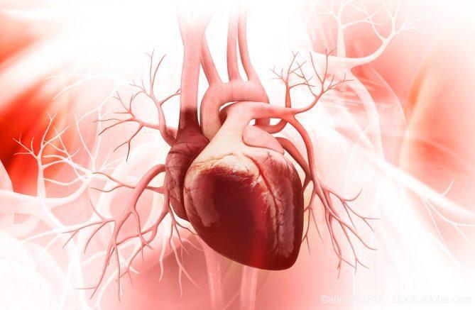 Gewebekleber, Nach dem Herzinfarkt
