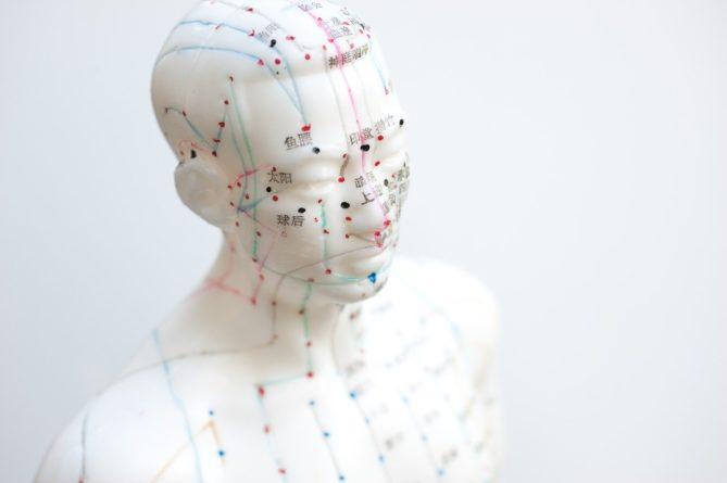 aiguille, acupuncture, agujas acupuntura
