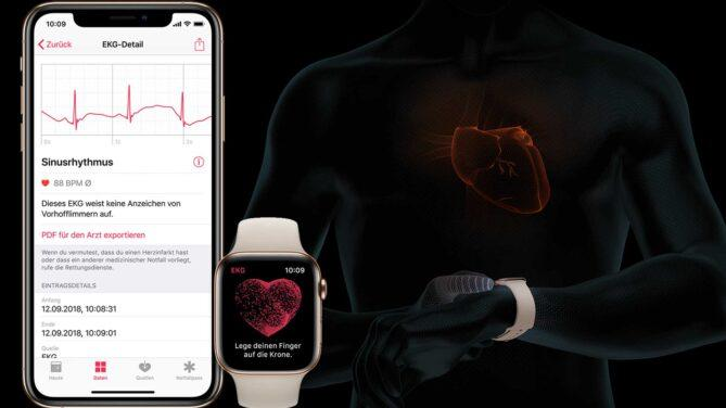 Apple Watch, EKG, iPhone, Vorhofflimmern