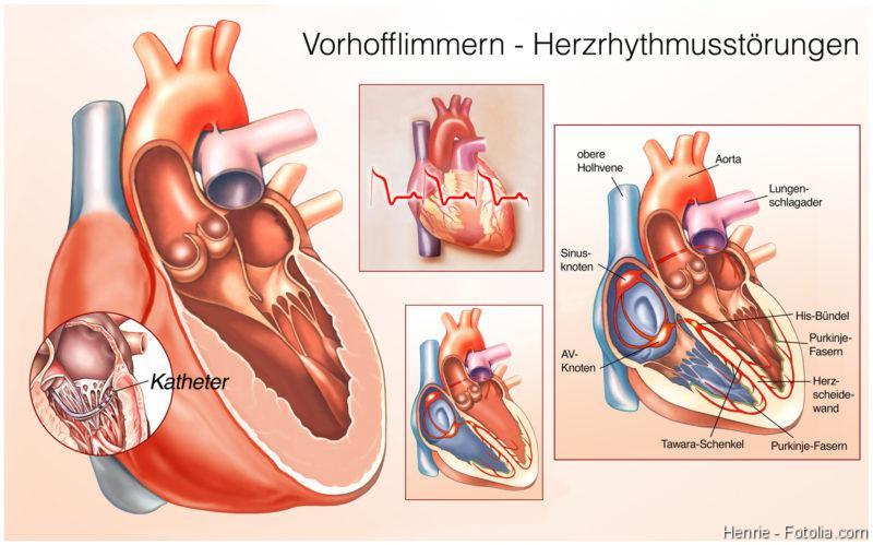 Diagnoseverfahren, Herzschwäche, Herzrhythmusstörung, Vorhofflimmern