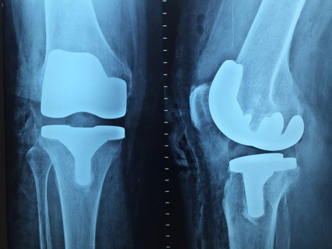 Seltene Knochenerkrankung, Knieprobleme, Knie, Schalldiagnostik, Arthrose, Gelenkersatz, Gelenk, Knochen