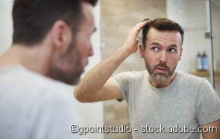 Geheimratsecken, Haartransplantation