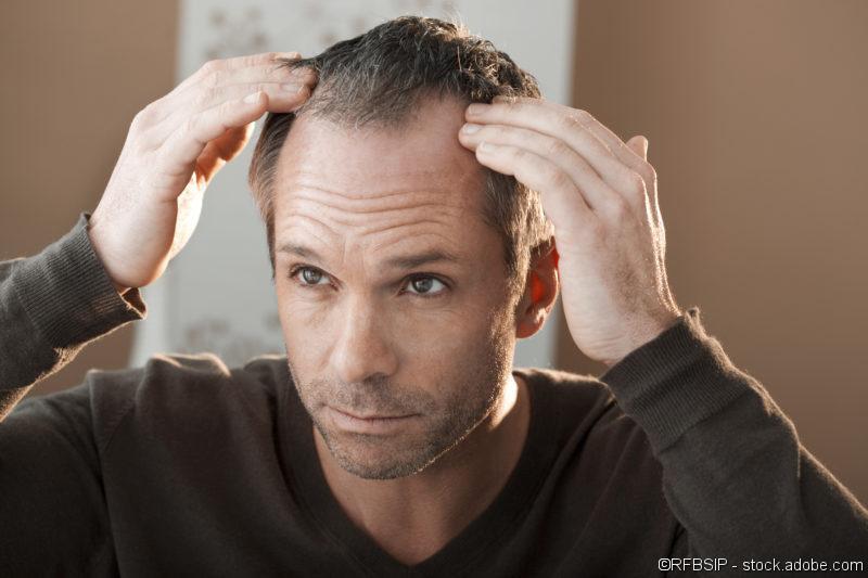 Haarausfall, Haartransplantation