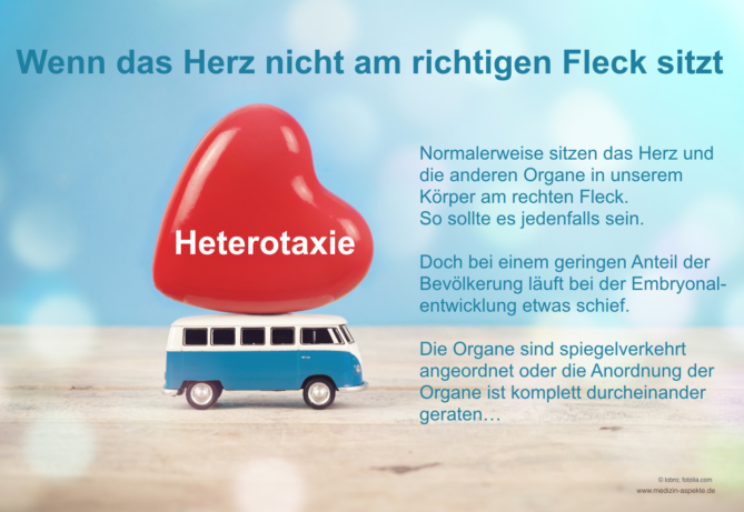 Heterotaxie, Herz