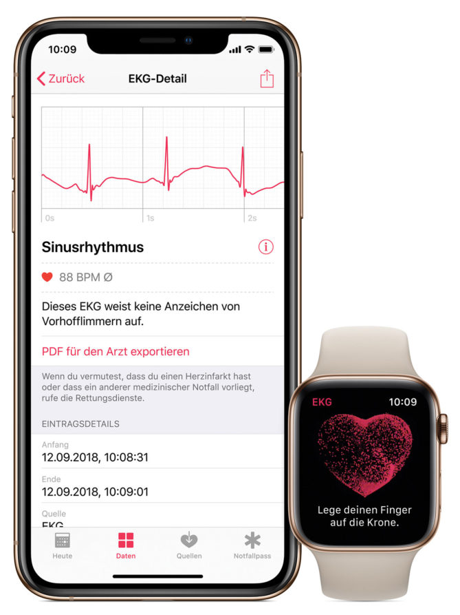 iPhone mit EKG-Darstellung