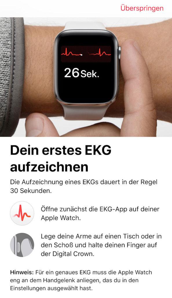 Aufzeichnung des EKGs mit der Apple Watch EKG-App.