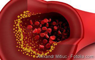 Thrombektomie, Blutplättchen, Blutuntersuchung