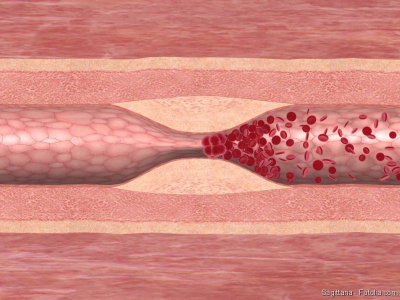 Schlaganfall, Blutgerinnsel
