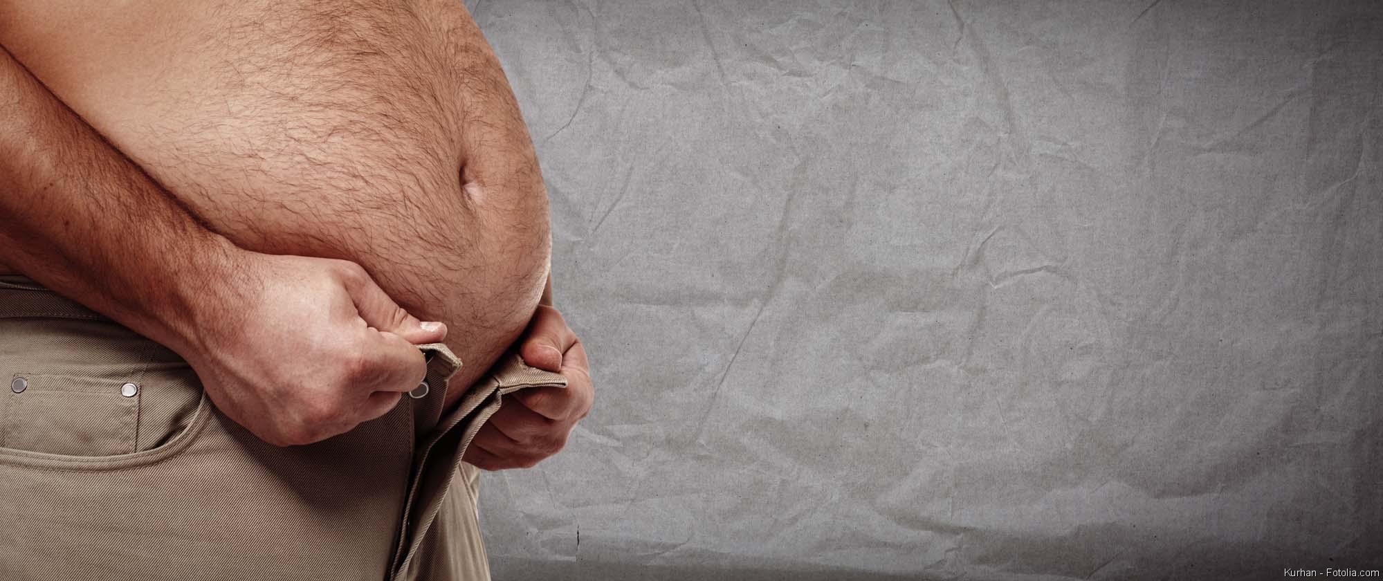 Krankhaftes Übergewicht, BMI, Fettleibigkeit, Adipositas, Übergewicht