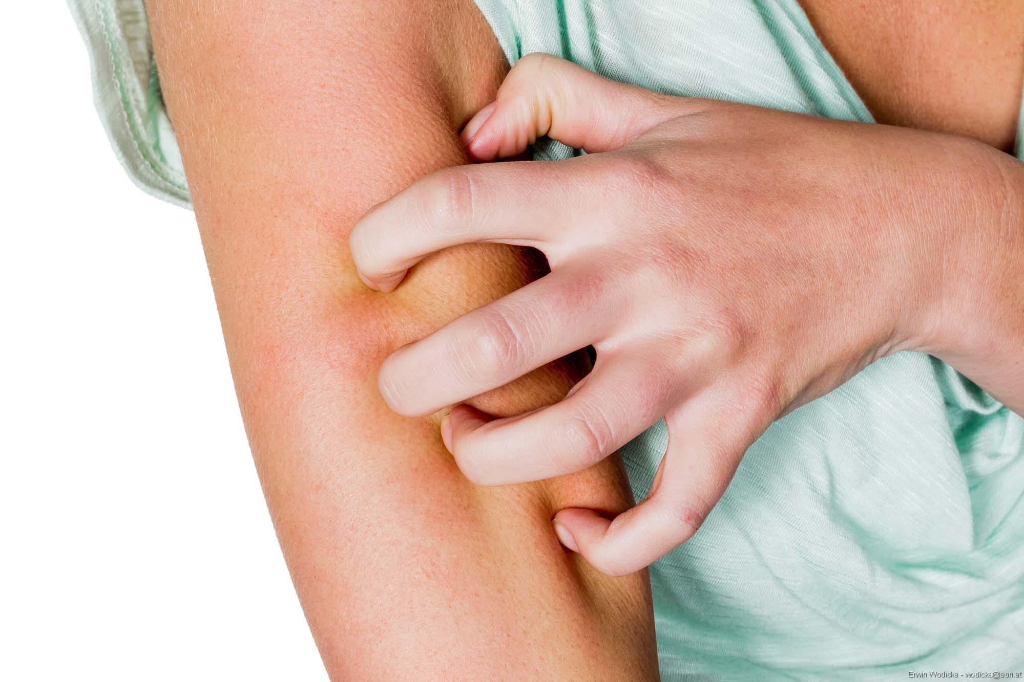 Hautkrankheit mit chronischem Juckreiz, Schuppenflechte, Neurodermitis: Katzen der juckenden Haut