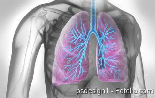 Schweres Asthma, Schimmel