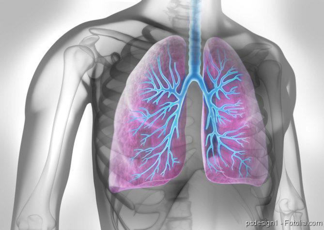 Lungenkrebs, Lungenentzündung, Schweres Asthma, Schimmel