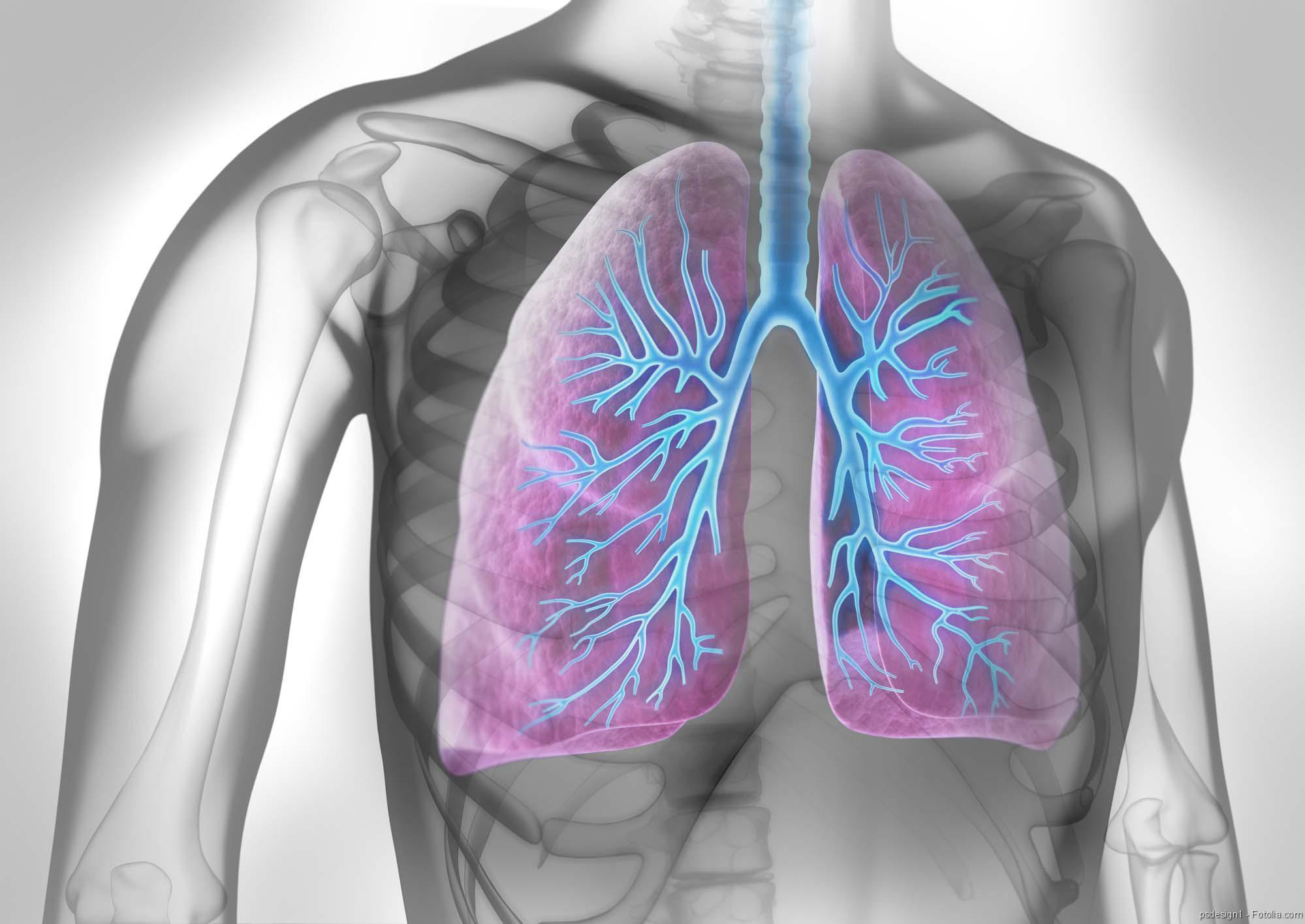 Lungenerkrankung, Lungenkrebs, Lungenentzündung, Schweres Asthma, Schimmel