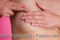 Mammakarzinom. Untersuchung der weiblichen Brust