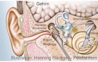 Behandlung des Akustikusneurinoms, Künstliches Hören, Gehör, Innenohr, Medizintechnik