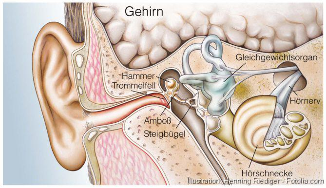Neurofibromatose, Behandlung des Akustikusneurinoms, Künstliches Hören, Gehör, Innenohr, Medizintechnik