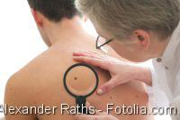 Plattenepithelkarzinom, Schwarzer Hautkrebs