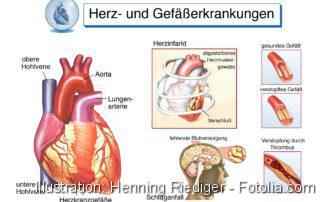 Herzerkrankungen.Gefäßerkrankungen.Herzinfarkt