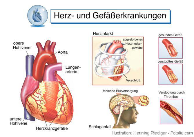 Herzerkrankungen
