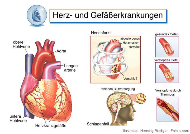 Aortenbogen, Aorta, Herzerkrankungen, Gefäßerkrankungen, Herzinfarkt, Schlaganfall