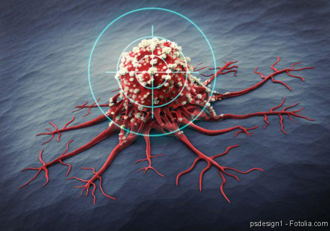 Hirntumor Zelle; Krebs; Krebszelle