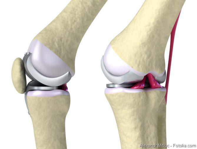 Arthrose, Knochen, Rheumatide Arthritis
