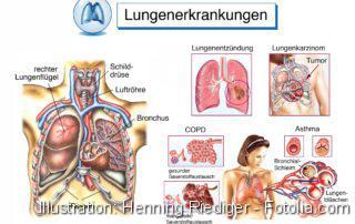 Lungenerkrankungen.Männlicher Oberkörper/Lungenflügel