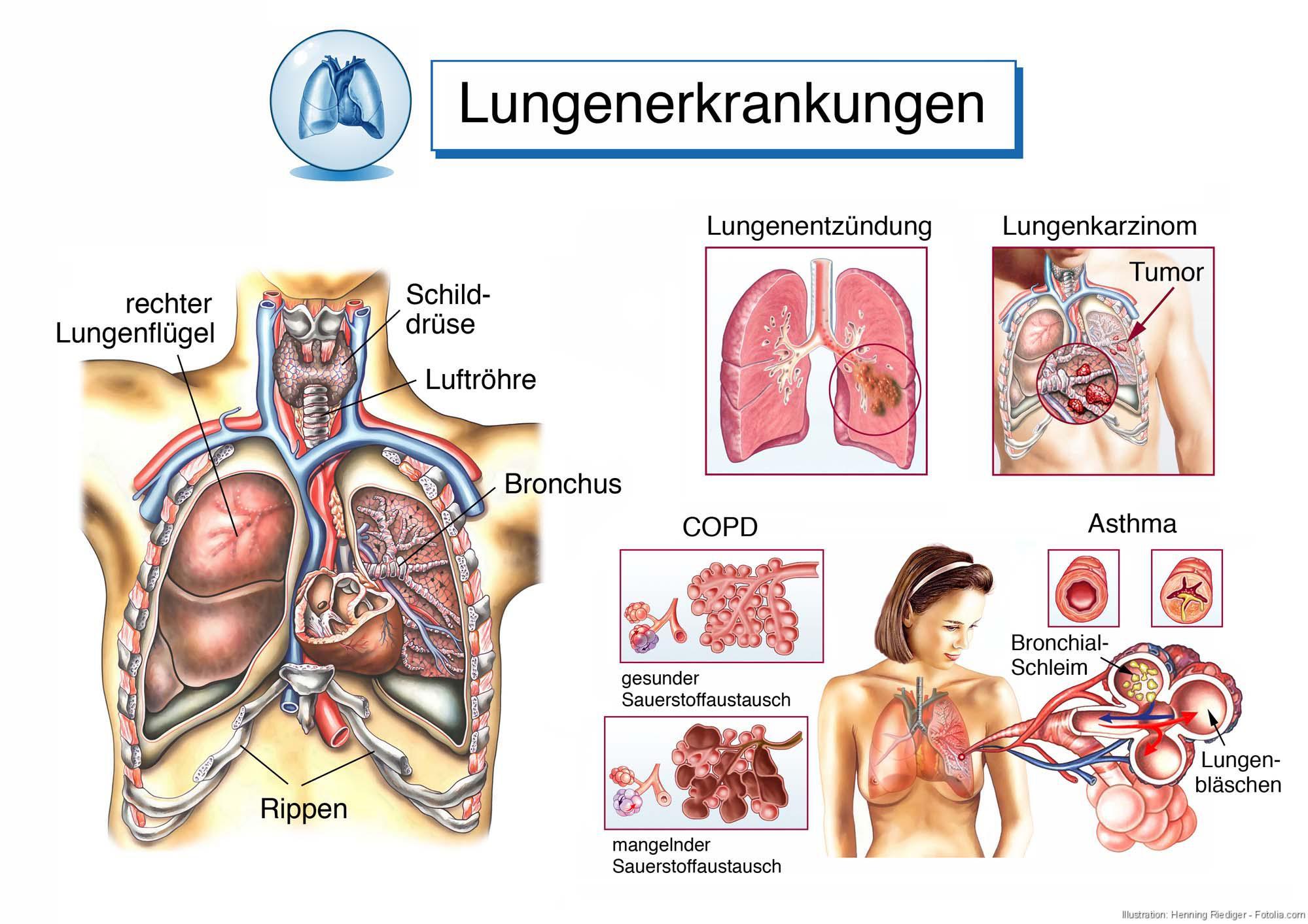 Arbeitsblatt Lunge Und Atemwege : Lungenerkrankungen feinstaub weckt schlafende viren in