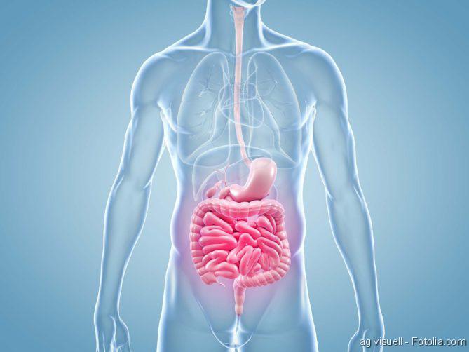 Darmkrebs-Operation, Reflux, Darm, Darmbakterien, Darmkrebs, Darm, Darmerkrankungen, GastroTrials, DarmReizdarm,