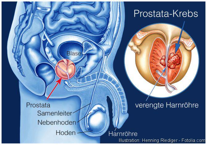 Prostatakrebs, PSA, Prostata, Prostatakrebs