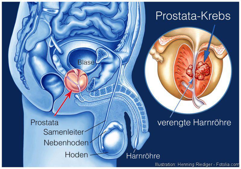 Prostata, Prostatakrebs. Schema des männlichen Urogenitaltraktes