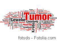 Metastasierung, DGHO-Roadmap, Metastasen, Bindegewebszelle, Krebs, Tumor