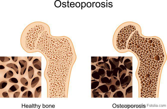 Osteoporose, Glukokortikoid-Therapie, Osteoporose, Knochenschwund, Osteoporosis