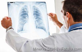 Arzt prüft Röntgenbild der Lunge
