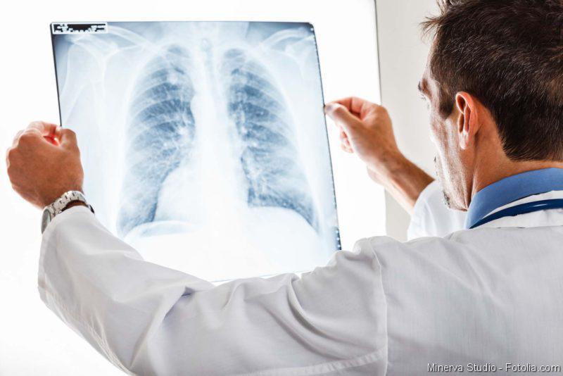 Lungenkrebs, Lungenerkrankungen, Lunge, COPD, Lunenfibrose, Onkologie, Biosimilars, DGHO, Arzt, Patient