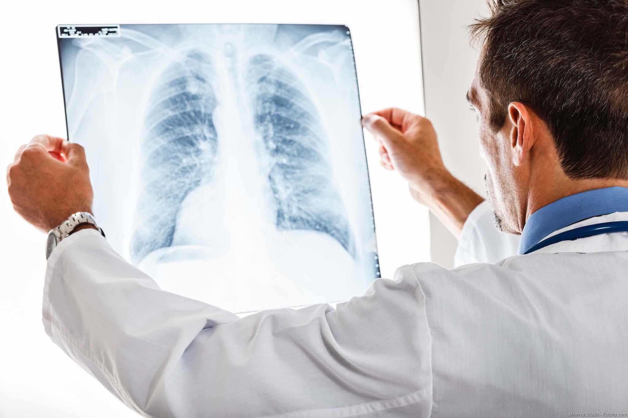 Mukoviszidose, Lungenkrebs, Lungenerkrankungen, Lunge, COPD, Lunenfibrose, Onkologie, Biosimilars, DGHO, Arzt, Patient