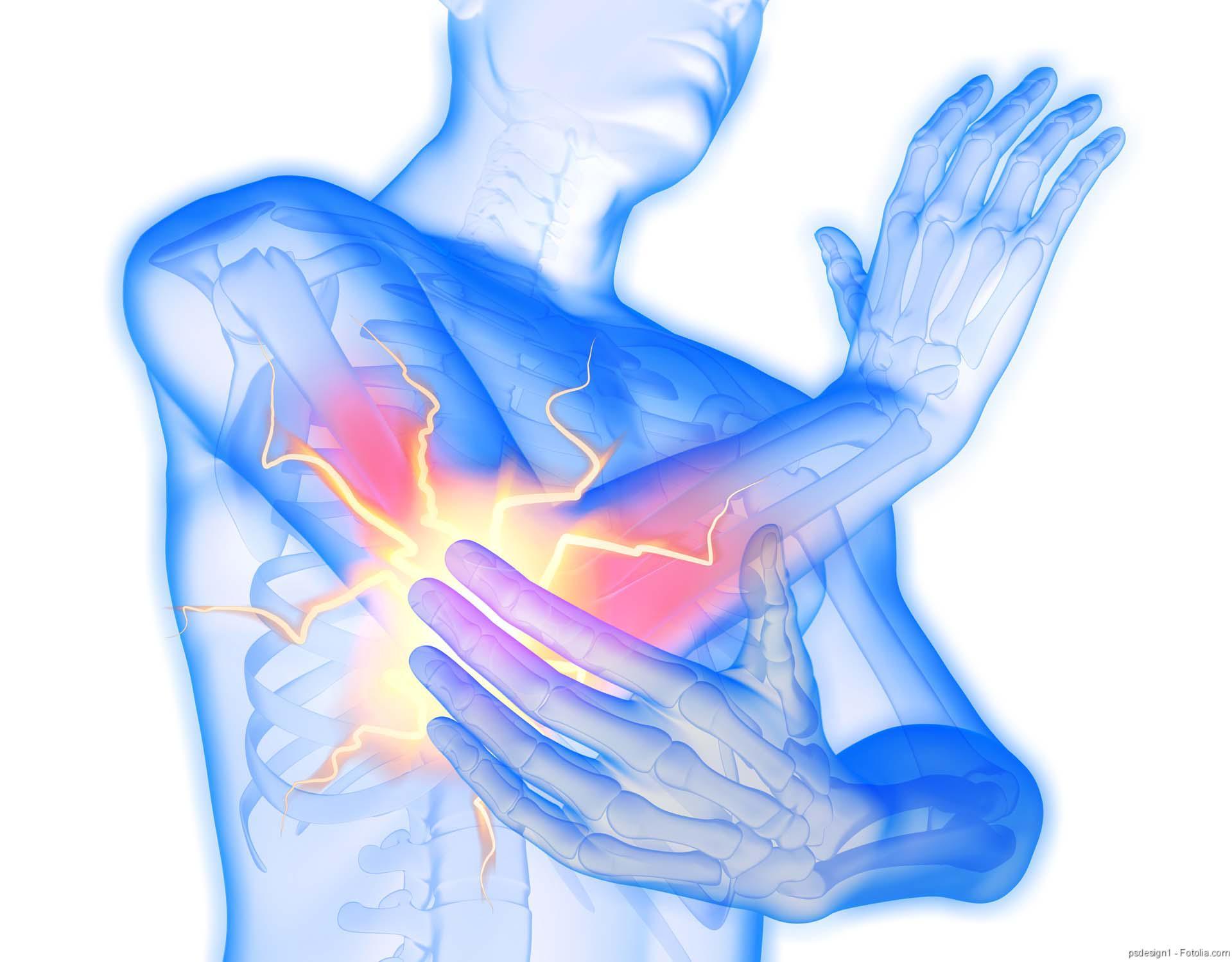 Schmerz, Rheuma, Rheumatoide Arthritis, Rheumaerkrankungen