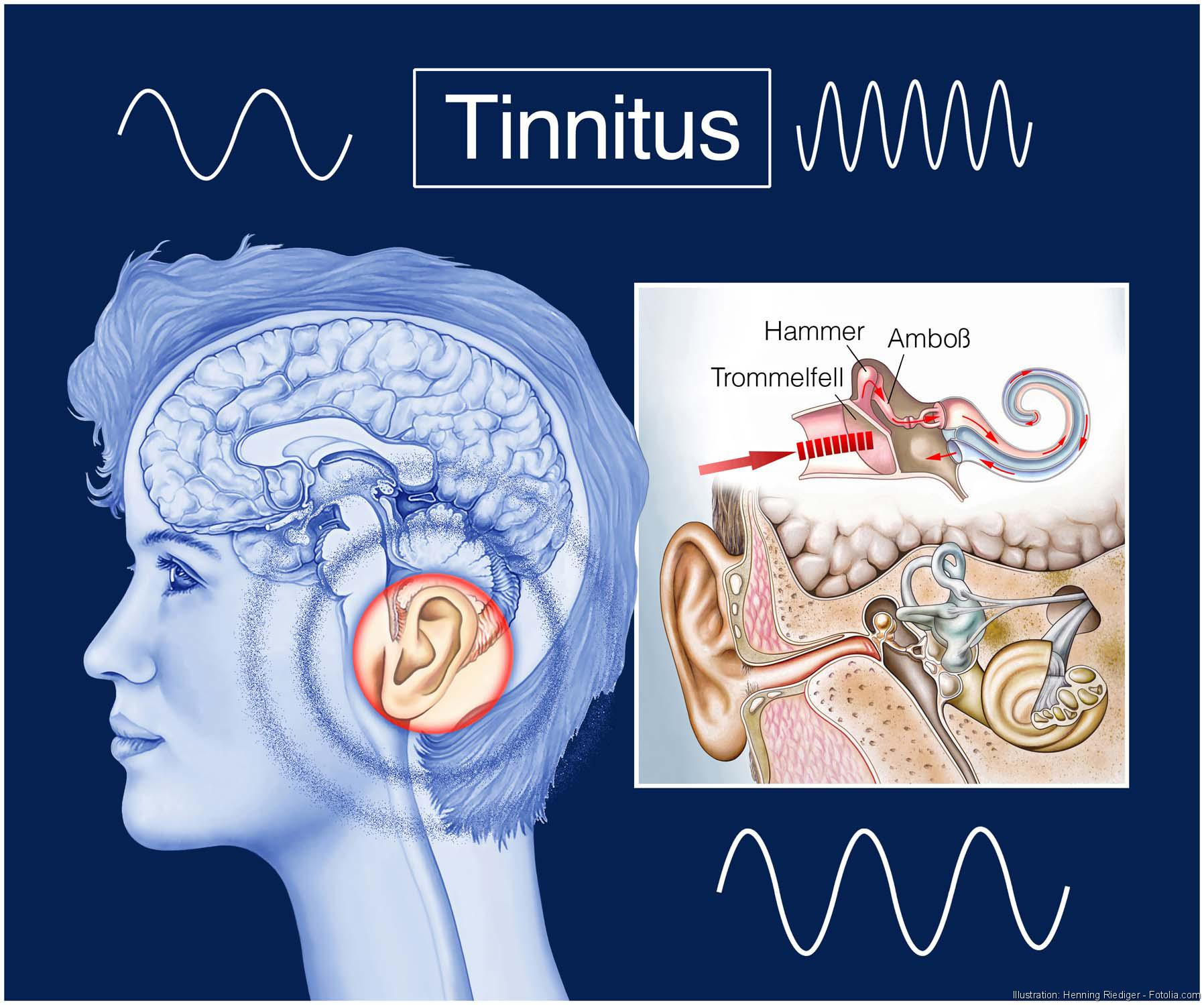 Ohrgeräusche durch Silvester, Tinnitus